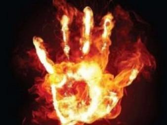 Чоловіку, який підпалив себе на Театральному майдані, пересадили шкіру