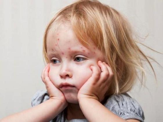 На Ківерцівщині зафіксували шість випадків захворювання на кір